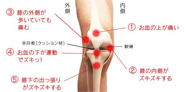 場所 膝 が 痛い